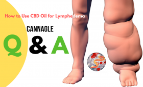 How to Use CBD Oil for Lymphedema